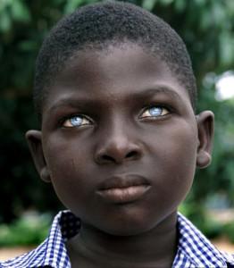 African Boy Blue Eyes